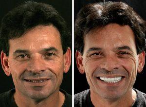Cosmetic Dentist Fresno