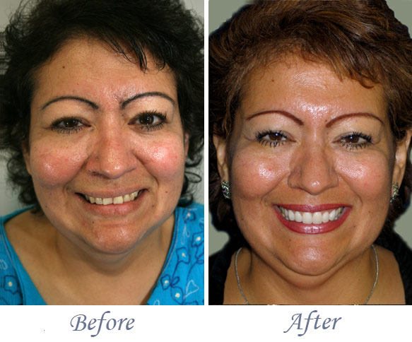 Smile Makeover in Fresno