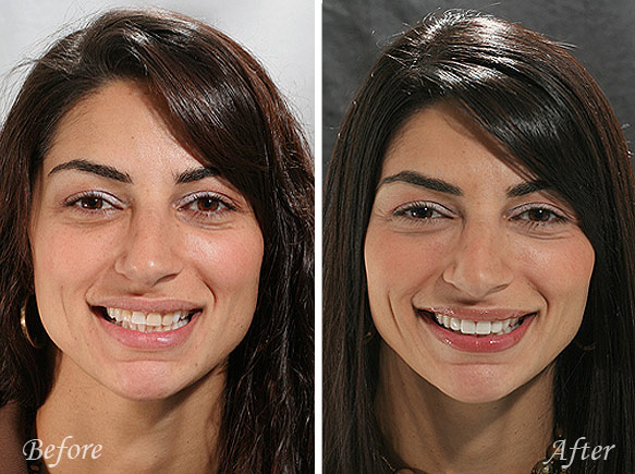 Collins Cosmetic Dentist Fresno Before and After