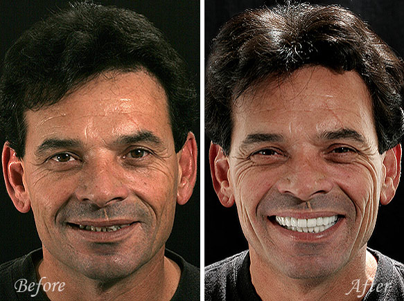 Dental Veneers Fresno Before and After
