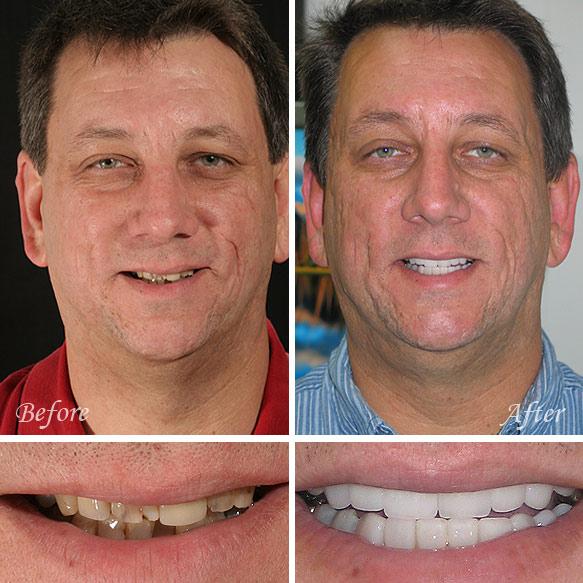 Dental Veneers Fresno Before & After