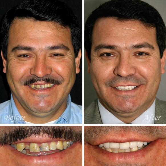 Dental Veneers in Fresno Before & After