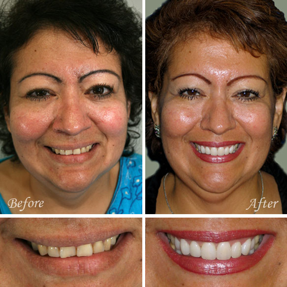 Before & After Cosmetic Dentistry Fresno