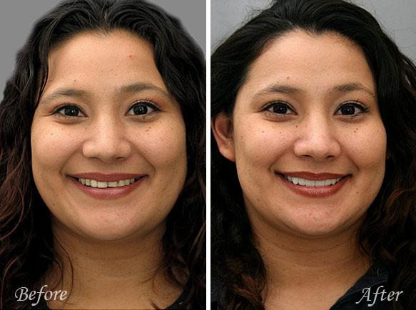 Cosmetic Dental Veneers Fresno Before & After