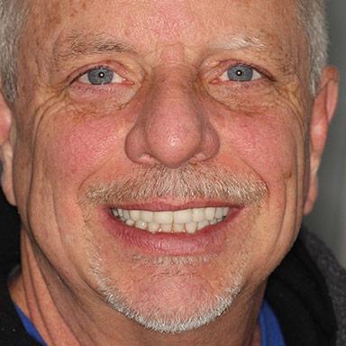 Implant Retained Dentures in Fresno