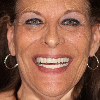 Implant Supported Dentures in Fresno